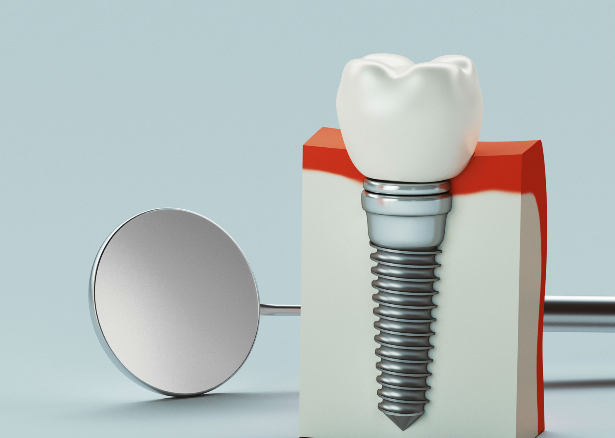 nc-dental-implants