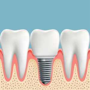 North Carolina Dental Implants