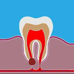 North Carolina Root Canal Therapy
