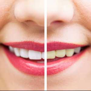 North Carolina Teeth Whitening